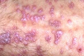 Красный плоский лишай - Клинические рекомендации